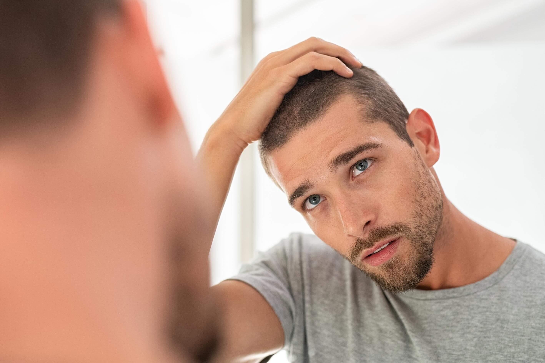 Perte de cheveux: hérédité et les autres causes à démystifier